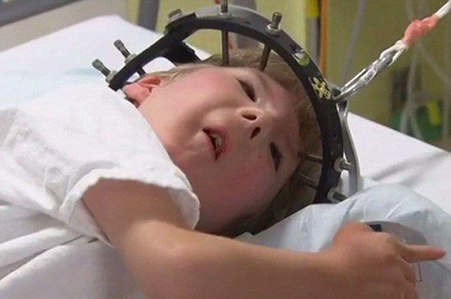 骨骼畸形8歲童重獲新生