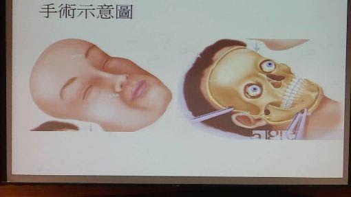 台灣首間醫院獲准替病人「變臉」