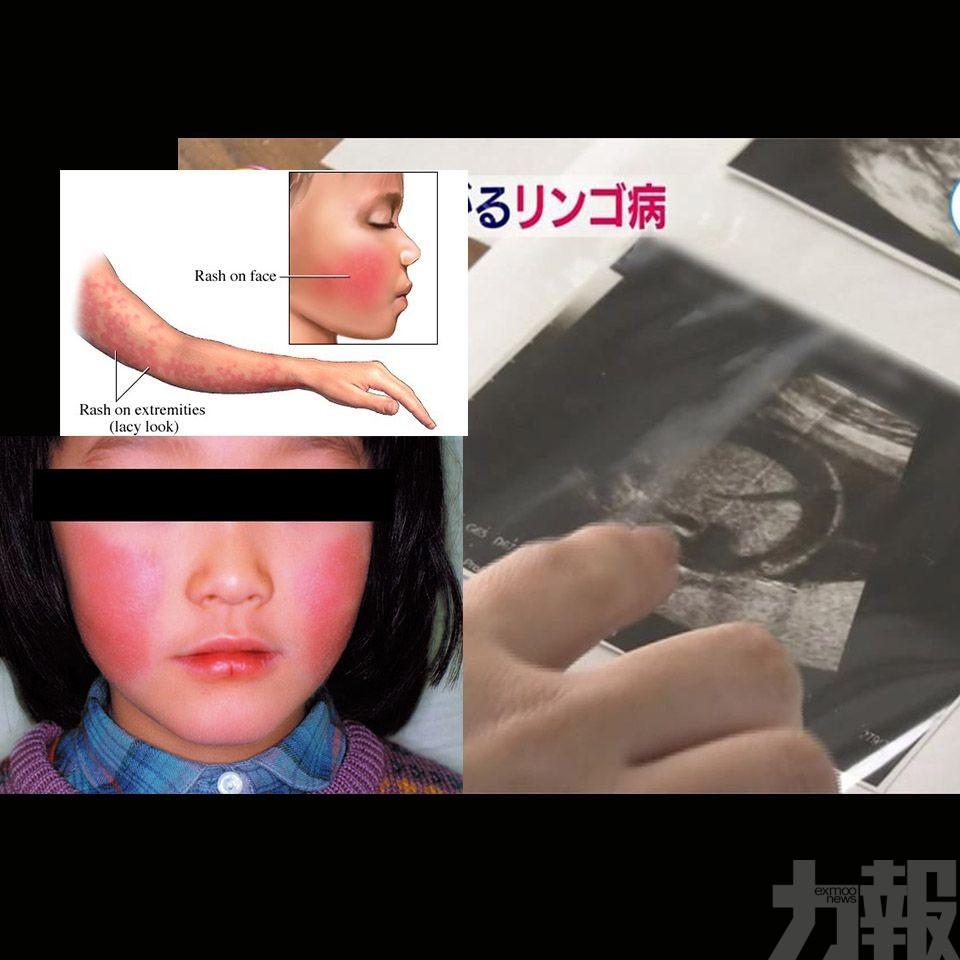 孕婦感染恐流產