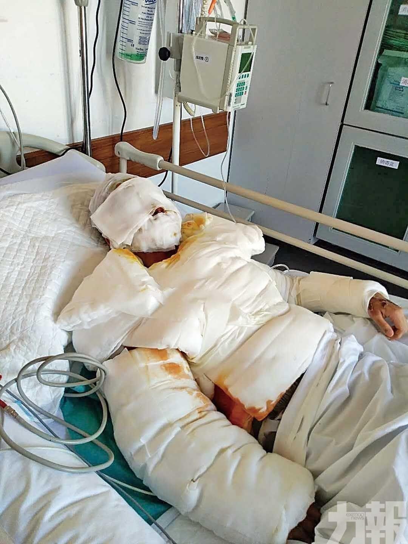 助嚴重家暴案女傷者赴新加坡治療