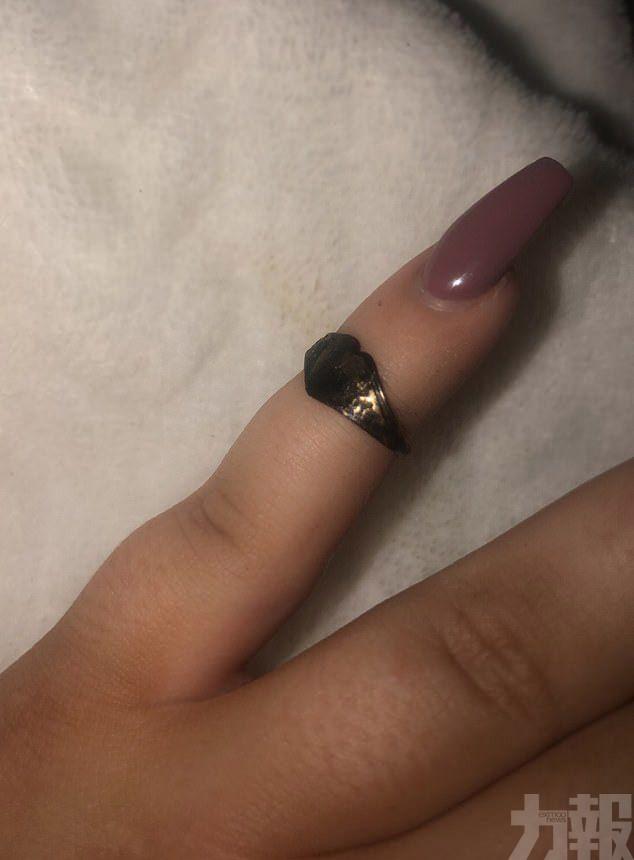 英女打乞嚏噴出12年前失蹤戒指
