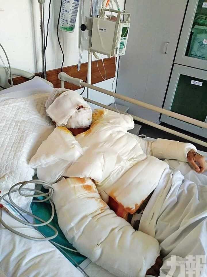 衛生局:家暴案傷者改往英國做復明手術