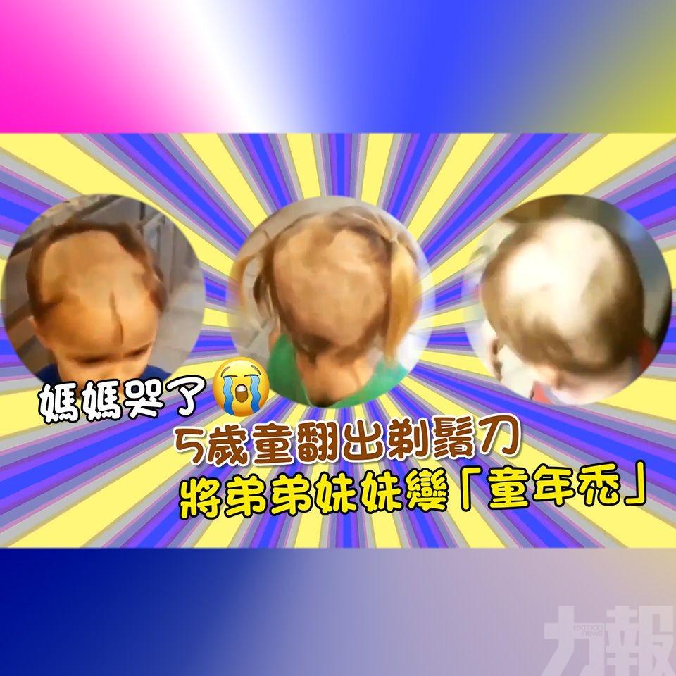 將弟弟妹妹變「童年禿」