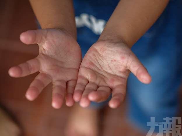 幼稚園和托兒所共8學童染腸病毒