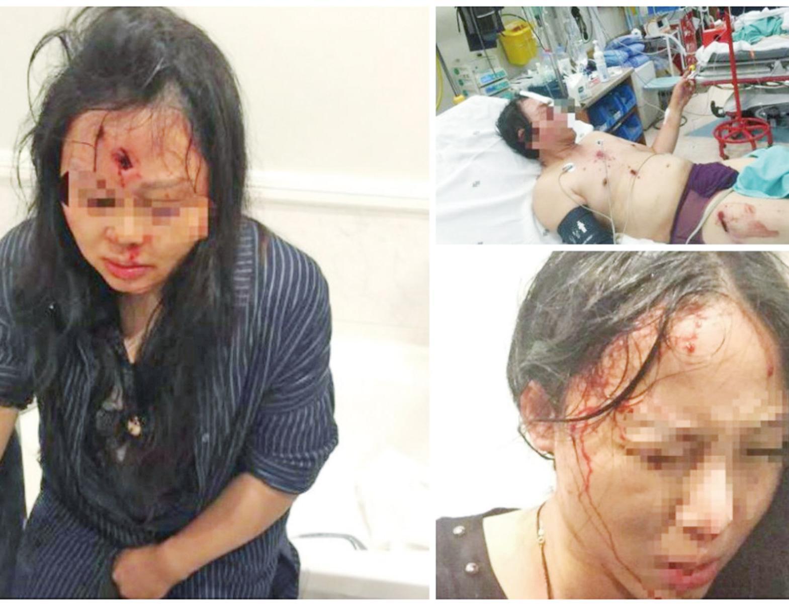 遭劫匪槍擊受傷