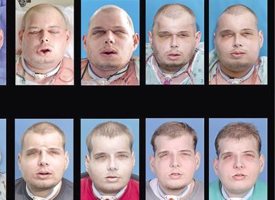 史上最強換臉手術 美毀容消防員換臉重生