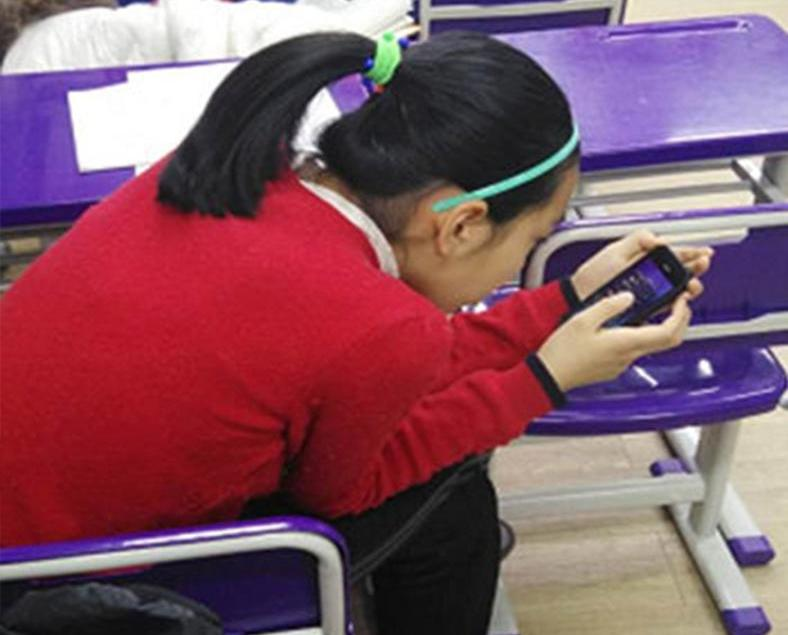 青島14歲少女頸椎老化如50歲