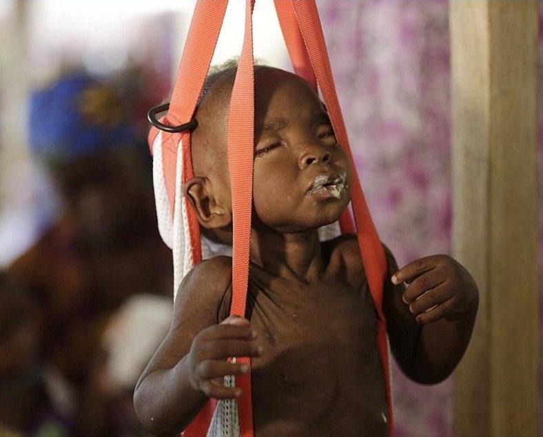 幼童餓死頻發