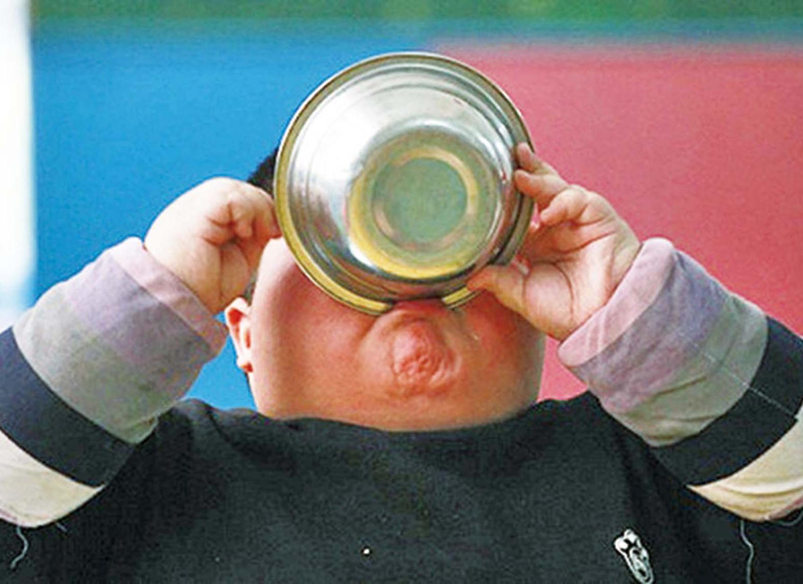 抗生素與兒童肥胖關係密切