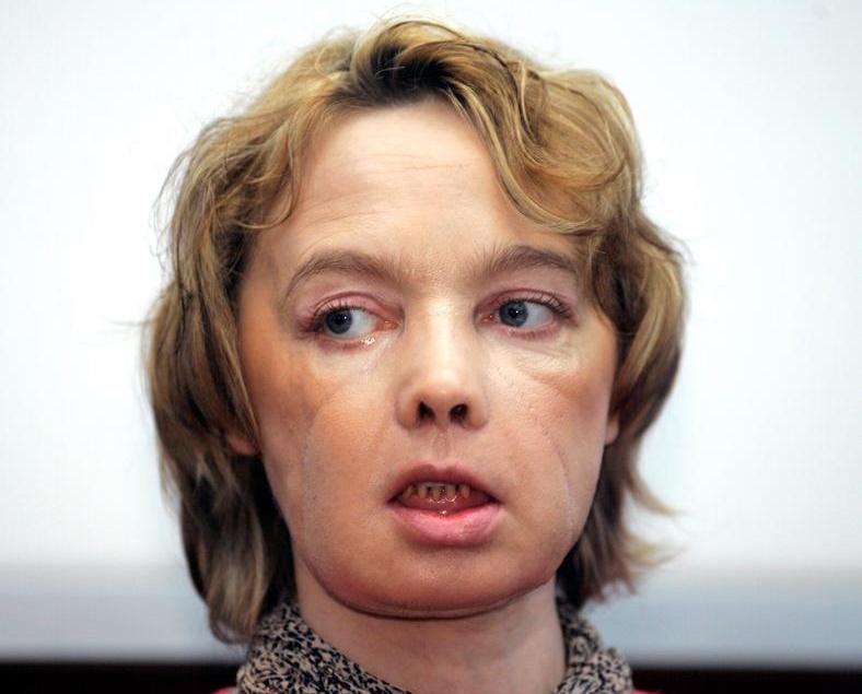 全球首名換臉女病人離世